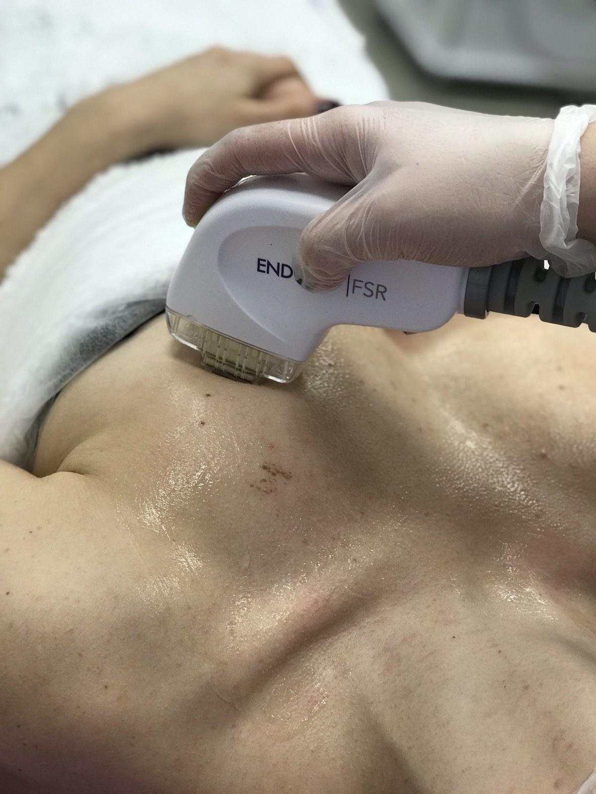 Фракційне шліфування шкіри обличчя та тіла на апараті EndyMed