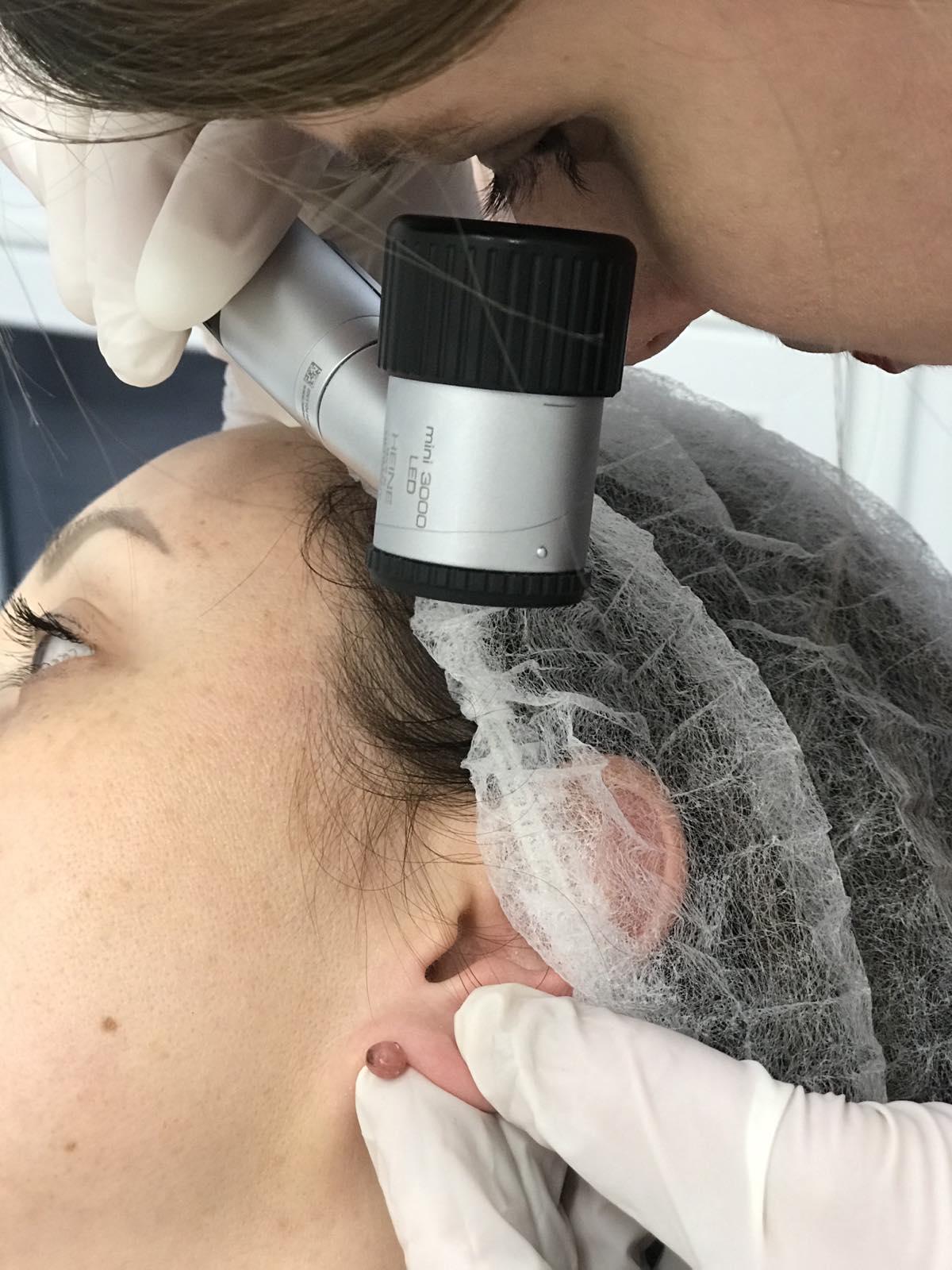 Дерматоскопія
